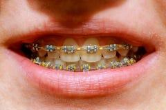 白色牙美丽的宏观射击有括号的 牙齿保护照片 秀丽与ortodontic辅助部件的妇女微笑 畸齿矫正术t 免版税库存图片