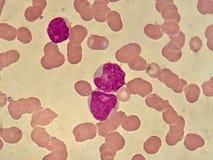 白血病细胞 免版税图库摄影