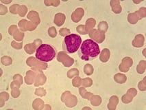 白血病细胞 免版税库存图片