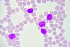 白血病细胞 免版税库存照片