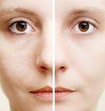 皮肤多斑点的妇女 免版税库存图片