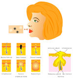 皮肤粉刺的形成 库存照片