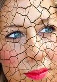皮肤问题 免版税库存图片