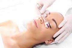 皱痕的减少在眼睛附近的, Mesotherapy microneedle 免版税库存图片