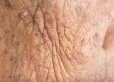 皱痕皮肤在非常老妇人和雀斑的 免版税图库摄影