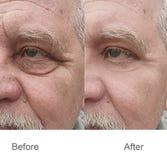 皱痕,前额,皮肤,面颊,面孔,眼眉,举 免版税库存照片