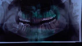 看牙齿X-射线板材的牙医特写镜头审查牙齿曲拱 使用计算机时,X-射线图象,当 影视素材
