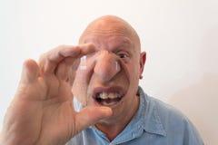 看通过在鼻子和嘴,畸变,秃头,脱发症,化疗,癌症的一个大透镜的更老的人 免版税库存图片