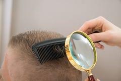 看头发的皮肤病学家通过放大镜 库存图片