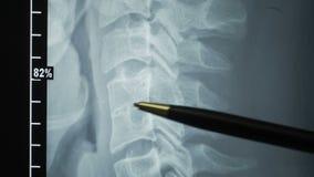 看MRI扫描的专业脊椎专家,检查补救进展 股票录像