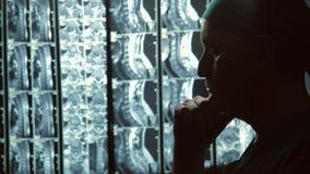 看MRI的严肃的男性治疗师扫描,摩擦下巴,无可救药的疾病 影视素材