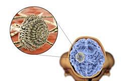 真菌曲霉菌脑子和特写镜头视图的曲霉肿  库存图片