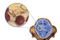 真菌曲霉菌脑子和特写镜头视图的曲霉肿  免版税库存照片