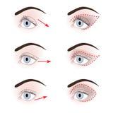 眼皮不同的形状  库存例证