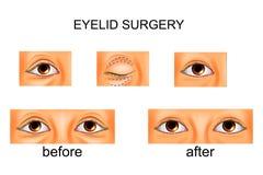 眼皮手术,整容手术 向量例证