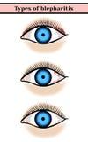 眼睑炎 化脓,激动的眼病 库存例证