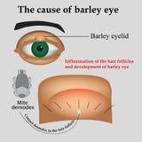 眼睛大麦的疾病 大麦的原因 免版税图库摄影