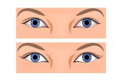 眼睛的赤红 免版税库存图片