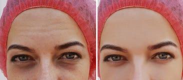 眼睛膨胀,在化妆做法前后的皱痕 图库摄影