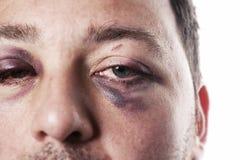 黑眼睛被隔绝的伤害事故暴力 免版税库存图片