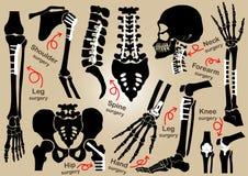 矫形手术(由板材和螺丝) (头骨,头,脖子,脊椎,骶骨,胳膊,前臂的内部定象的汇集, 库存图片