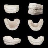 石膏塑造石膏模型stomatologic人的下颌 库存照片