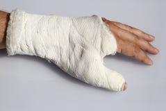 破碎的固定断手指的拇指骨头和绷带 图库摄影