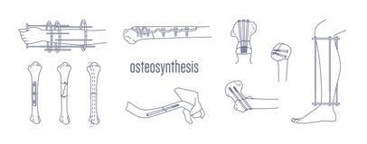 破碎的骨头和肢体的汇集固定与金属可植入的可移植的设备画与在白色的等高线 皇族释放例证