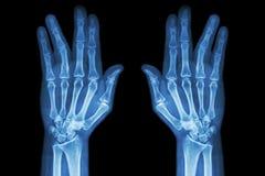破碎无名指(两影片的X-射线接近趾骨轴手AP) 库存图片