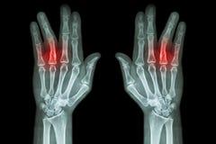 破碎无名指(两影片的X-射线接近趾骨轴手AP) 免版税图库摄影