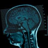 磁反应的脑子 库存图片