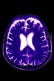 磁反应蓝色的脑子 库存照片