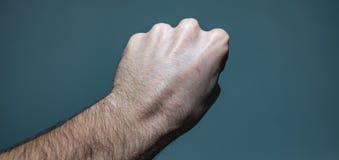 神经节囊肿团在手边 免版税图库摄影