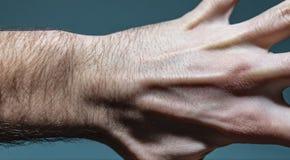 神经节在左手的囊肿团 库存图片