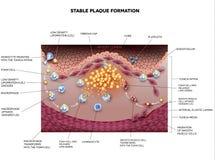 稳定的斑块形成,动脉粥样硬化 库存例证