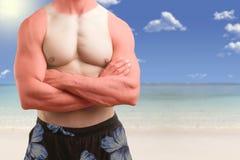 站立在与晒斑的一个海滩的适合的人 免版税图库摄影