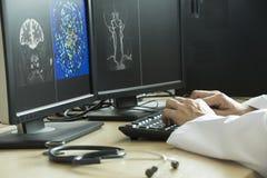 篡改指向在MRI图象的脑子解剖学 免版税图库摄影