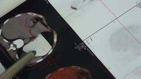 篡改研究颜色头&器官宠物ct,巨蟹星座转移 股票录像