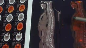 篡改研究颜色头&椎骨宠物ct,头骨脑子X-射线 股票视频