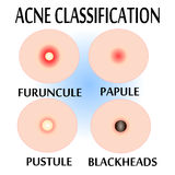 粉刺和丘疹的类型, 图库摄影
