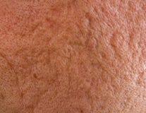 粉刺在面颊结疤 图库摄影
