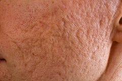 粉刺在面颊结疤 免版税库存照片
