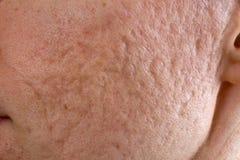 粉刺在面颊结疤 库存照片