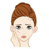 粉刺-面部皮肤麻烦 库存例证