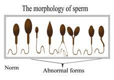 精液的形态学 正常和反常 免版税库存照片