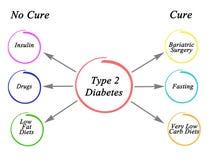 2糖尿病类型 皇族释放例证
