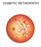 糖尿病视网膜病 免版税库存图片