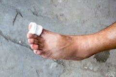 纱绷带脚,治疗患者与脚溃疡 免版税库存照片