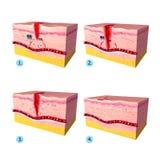 组织tepair解剖学在人力皮肤的 免版税库存照片