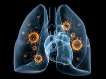 细菌肺 库存例证